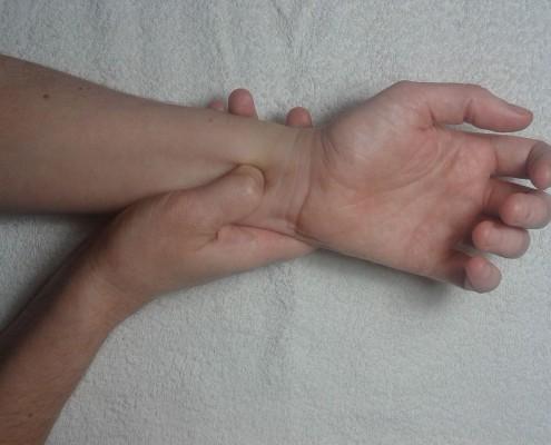 acupunctuur misslijkheid
